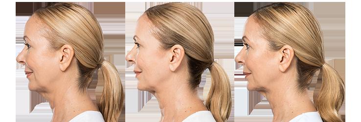Intralipoterapia com Belkyra na Clínica PRIVÉ
