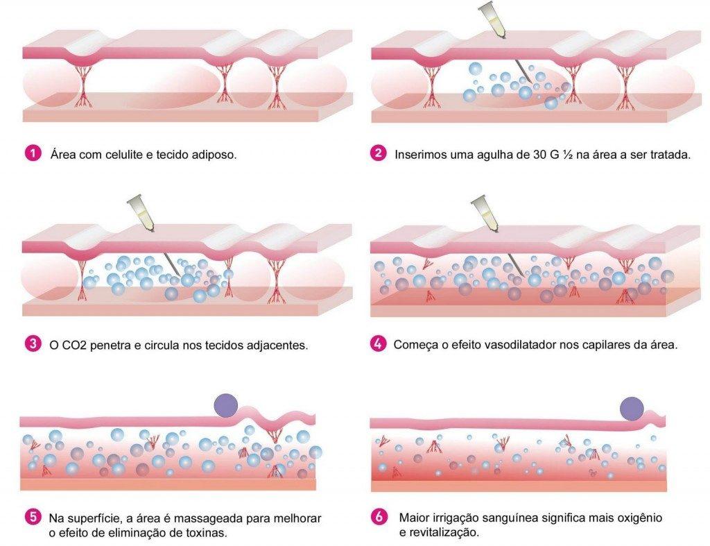Carboxiterapia na Clínica PRIVÉ