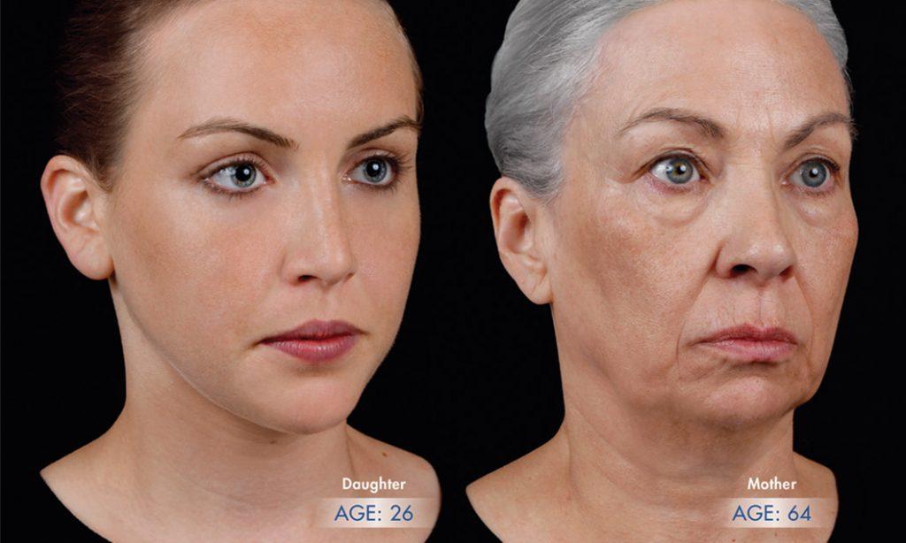Tratar a perda de volume rosto na Clínica PRIVÉ