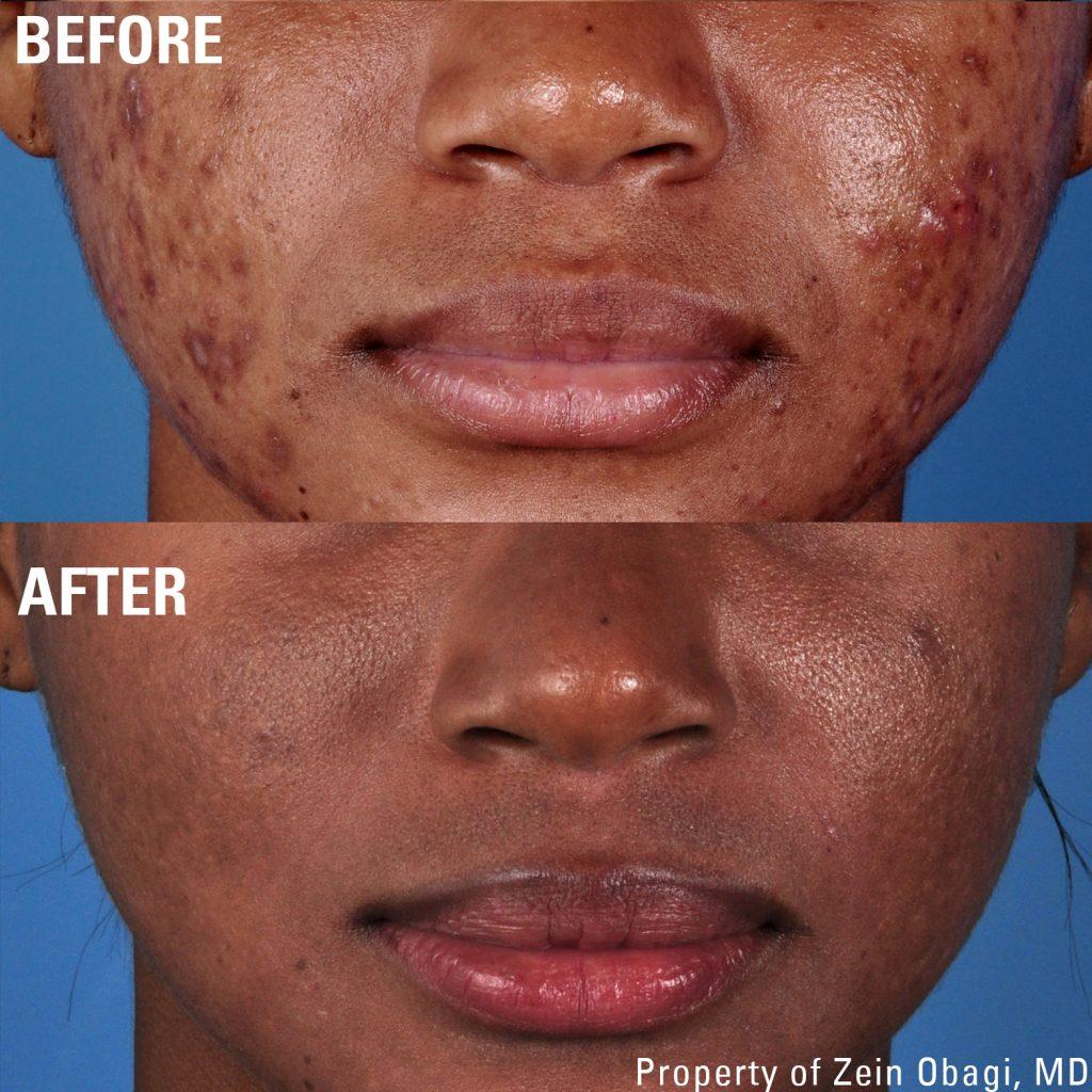 Hiperpigmentação Pós-Inflamatória tratado no Clínica PRIVÉ