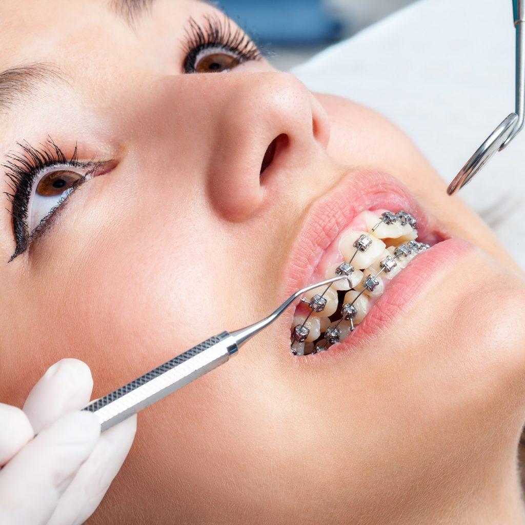 Tratar dentes tortos na Clínica PRIVÉ