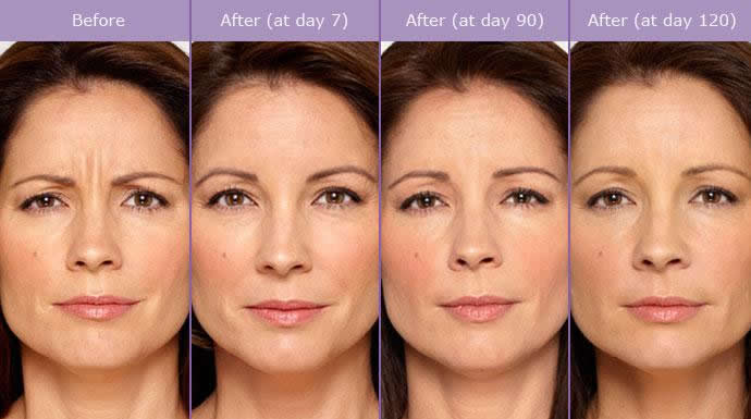 Tratamento Botox na Clínica PRIVÉ