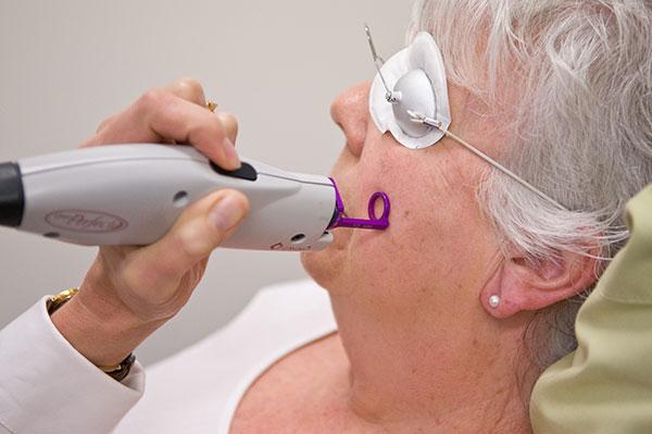 Tratar Rosacea com Laser Vbeam na Clínica PRIVÉ