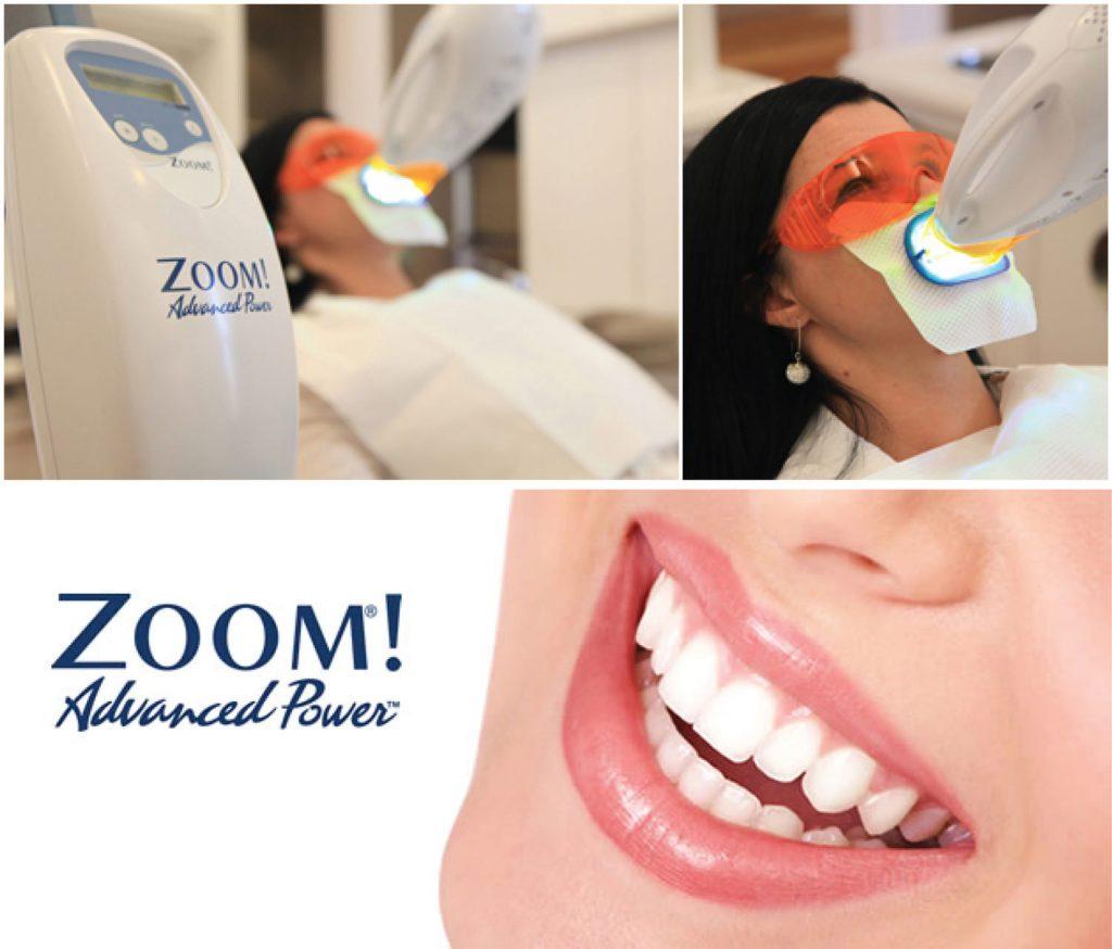 Branqueamento no Consultório ZOOM na Clínica Dentária PRIVÉ