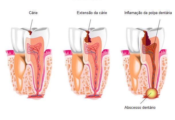 Abcesso Dentário na Clínica PRIVÉ