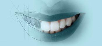 PRIVÉ Dentisteria Digital 3